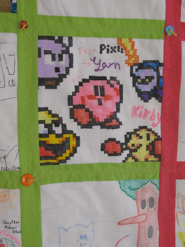 Kirby Detail