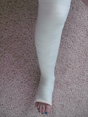 157 (katyacaster) Tags: broken leg cast woman