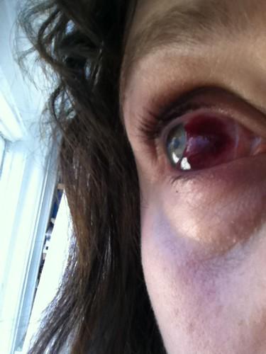 Burst blood vessel