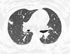 ASPERGILOSE ANGIOINVASIVA (Roberto Mogami) Tags: aspergilose aspergillus