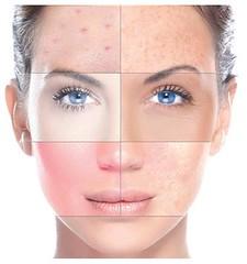 18118633_818481011635770_6397846277735109106_n (halahealthandbeauty) Tags: greenpeel facetreatment beauty wrinkles face treatment