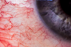 ruddy rivers (johndifool) Tags: macromondays eye blood adern blut iris veins macro