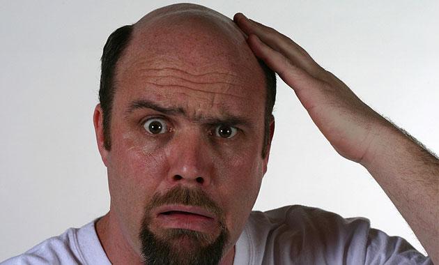 Mải miết nghiên cứu chữa ung thư, khoa học vô tình tìm ra đột phá trị... hói đầu - Ảnh 2.