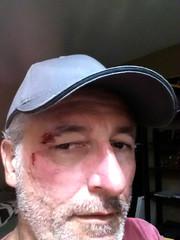 Ouch (Bracus Triticum) Tags: ouch self アルバータ州 alberta canada カナダ 8月 八月 葉月 hachigatsu hazuki leafmonth 2016 平成28年 summer august