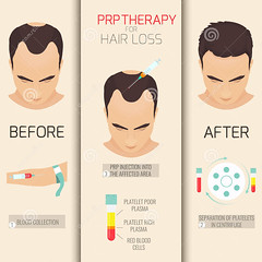 prp-therapy-hair-loss-platelet-rich-plasma-injection (drjenniferlevine) Tags: stimulanonsurgical growth for hair loss