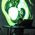 Fraunhofer MEVIS STEAM Imaging Workshop thumbnail