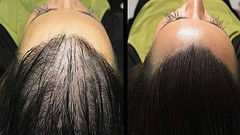 Home Remedies for Hair Regrowth ~ Homemade Hair Oil for Hair Growth ~ Secret Recipe for Hair Growth (shabash23) Tags: home remedies for hair regrowth ~ homemade oil growth secret recipe
