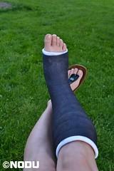 BiB2 (Nodu) Tags: slc toes leg cast brokenleg castfetish gips birkis