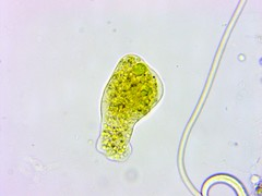 11Months_AfterMetro_Update_ATS-0047 (jason2459) Tags: photomicrography dinoflagellates bacteria algae amoeba cyst microscope