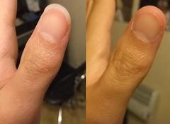comparaison 19 (ongle86) Tags: hands mains ongles nails biting rongés thumb sucking pouce sucé fetichisme fingers doigts
