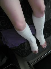 120 (katyacaster) Tags: women soft leg cast