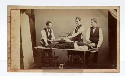 Amputation Photograph ($336.00)