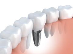 Best dental implant treatment in Punjab (savneetkaurldh1992) Tags: tooth implant 3d clean denture dent prosthesis dental dentist dentistry illustration medical render root teeth white bright enamel molar stomatology human jaw maxilla