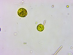 11Months_AfterMetro_Update_ATS-0041 (jason2459) Tags: photomicrography dinoflagellates bacteria algae amoeba cyst microscope