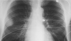 What You Need to Know about Lung Nodule (icd10for) Tags: lung nodule