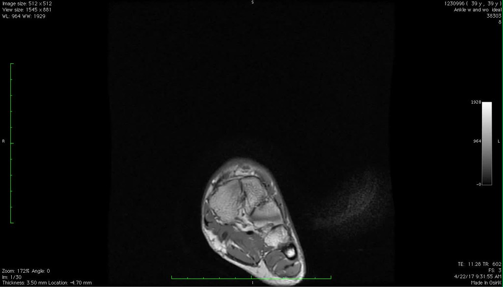 The World\'s Best Photos of foot and mri - Flickr Hive Mind