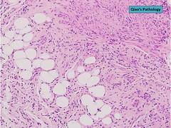 Qiao's Pathology: Uterine Lipoleiomyoma (Qiao's Pathology (Art and Science in Medicine)) Tags: qiaos pathology uterine lipoleiomyoma microscopic