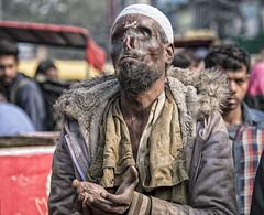 INDIA8377- praying for alms............... (Glenn Losack, M.D.) Tags: india beggars begging burned burns deformed handicapped alms charity muslims islam jummah fridays jamamasjid poor poverty prayer please give me help