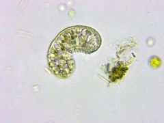 11Months_AfterMetro_Update_ATS-0029 (jason2459) Tags: photomicrography dinoflagellates bacteria algae amoeba cyst microscope