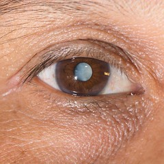 FAQs for Cataract Surgery (wileseyecenter) Tags: