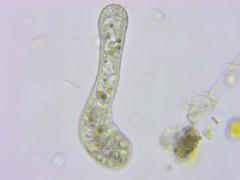 11Months_AfterMetro_Update_ATS-0027 (jason2459) Tags: photomicrography dinoflagellates bacteria algae amoeba cyst microscope
