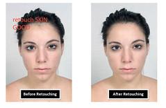 Eliminate snaps fault though photo retouching (phototrims1) Tags: retouch eliminatesnapsfault removeskinspots photoretouching