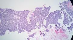 Basal Cell Adenoma, Parotid gland (euthman) Tags: pathology specimen photomicrograph monomorphicadenoma basalcelladenoma parotidgland corebiopsy he