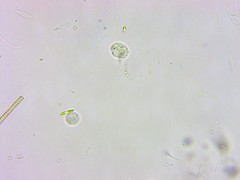 11Months_AfterMetro_Update_ATS-0042 (jason2459) Tags: photomicrography dinoflagellates bacteria algae amoeba cyst microscope