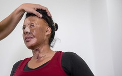 Acid attack horror: woman's Face doused in corrosive liquid (q2dcwVR22ab) Tags: terrible terror muslim women life victims london corrosivechemical acidattacks acid