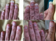 DSCF3160 (ongle86) Tags: hands fingers nails fetichisme biting ongles rongés mains doigts thumb pouce sucé sucking