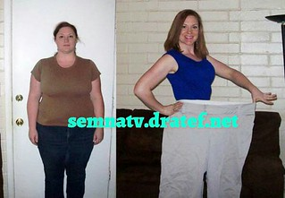 semnatv  semna (obesity ) tv app تطبيق تلي�زيون السمنه  July 14, 2017  All what you want to know about obesity and means of weight loss, whether surgical or non - surgical also indiactions and complications of every method ....also the app include many ot