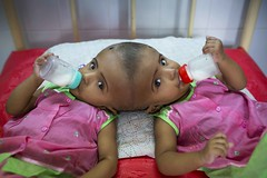 Bangladeshi twins born joined at skull (auniket prantor) Tags: baby bangladesh bizarre child conjoinedtwin connection dhaka girls healthcareandmedicine horizontal hospital humaninterest photography twin conjoine surgery interesting topic health issue human girl drink milk drinking thgether