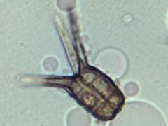 Tetraploa sp. (Wilhelm Guggisberg) Tags: tetraploa spore mold