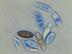 various ascospores (Wilhelm Guggisberg) Tags: ascospores mold spores
