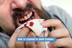 How to respond to tooth trauma? (genf20guide) Tags: bleed blood caries caucasian circulation close closeup dental disease fight gingivitis gum handkerchief illness inflammation loser male man mouth pain periodontal periodontitis plaque problem studio tissue trouble white