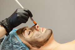 Application of carbon nanogel (kellydermody1) Tags: medical woman spa face carbon laser peel acne beauty facial treat beautician beautiful care clinic conditions cosmetic cosmetology electronic equipment female lifting method patient photo pigmented procedure regeneration rejuvenation remove resurfacing salon skin skincare treatment whiteheads aging blackheads collagen elastin epidermal lesions pimple pore rejuvenate revital wrinkles dermatology electron women russianfederation