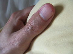 DSCF3157 (ongle86) Tags: hands fingers nails fetichisme biting ongles rongés mains doigts thumb pouce sucé sucking