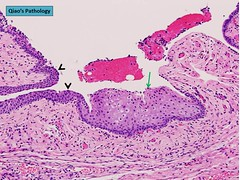 Qiao's Pathology: Transitional Cell Metaplasia of Fallopian Tube Fimbriae (Qiao's Pathology (Art and Science in Medicine)) Tags: qiaos pathology transitional cell metaplasia fallopian tube fimbriae microscopic