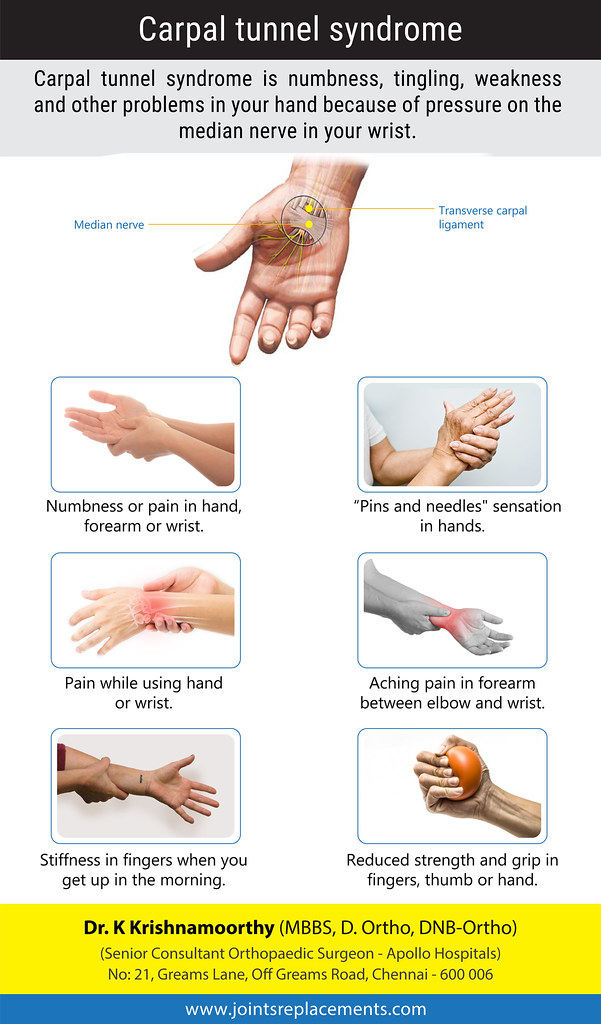 Arthritis And Carpal Tunnel Syndrome Early Psoriatic Signs