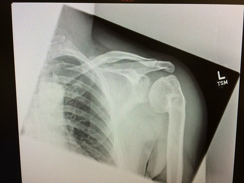 DAMN BROKEN SHOULDER STILL NOT RIGHT ...... 6 YRS ON !