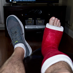Broken Ankle (ramseybuckeye) Tags: broken ankle femur oblique fracture non displaced red cast pentax life
