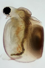 Ceriodaphnia with resting egg (mr.sansibar) Tags: zooplankton focusstacking olympusbh2 ceriodaphnia crustacea photomicrography microscopy heliconfocus waterflea
