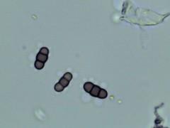 Spondylocladiella sp. spore (Wilhelm Guggisberg) Tags: spondylocladiella spore mold