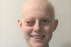 Ben Tylecote Catmose College Oakham needs £1000,000 to remove a  rare cancerous tumour behind his eye, Can you help fund the operation the NHS Wont Fund? (@oakhamuk) Tags: bentylecote catmosecollege needs £1000000 remove arare cancerous tumour behind his eye can you helpfund operation amsterdam cancer stamford oakham rutland uk england hospital