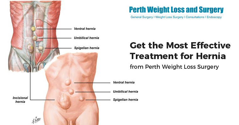 weight loss cures ventral hernia