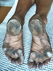After city running (danragh) Tags: callused piedineri piediscalzi dirtyfeet barefootsoles cityrunning blacksoles