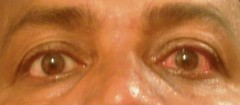 Eye injury (joegoaukextra3) Tags: joegoauk goa fire eye injury red burning tears sensation crackers