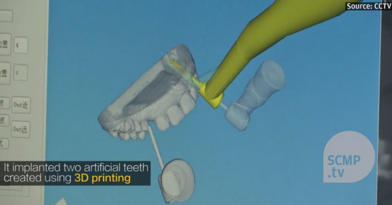 這是一個能自主為你種牙的機器人,手藝又快又穩還精準