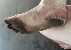 dirty city feet 015a (dirtyfeet6811) Tags: feet foot sole barefoot dirtyfeet dirtyfoot dirtysole blacksole cityfeet