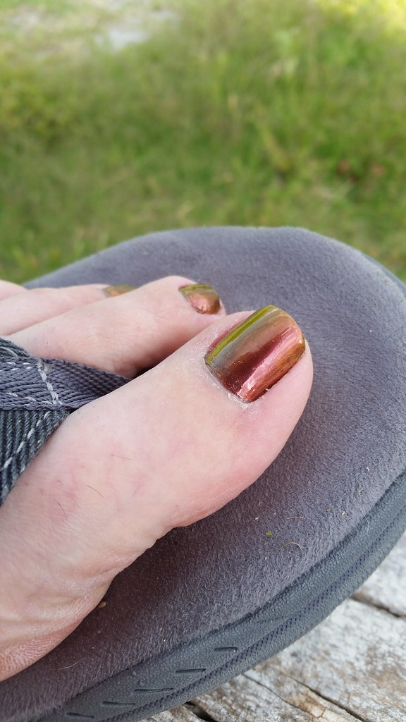 Yellow Toenails And Diabetes: The World's Best Photos Of Pedi And Red